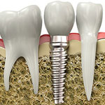 Dental Implants, Burlington Ontario Dentist